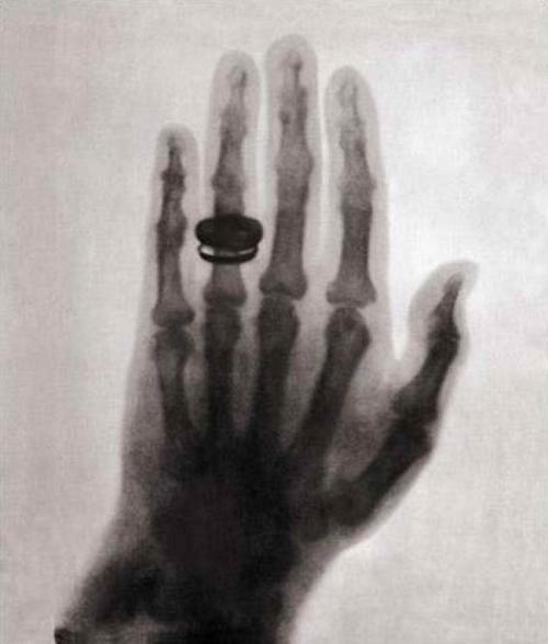 Вильгельм Рентген фото